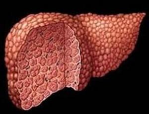 Вам диагностирован цирроз печени. Что это такое и как улучшить и продлить себе жизнь с этим заболеванием.