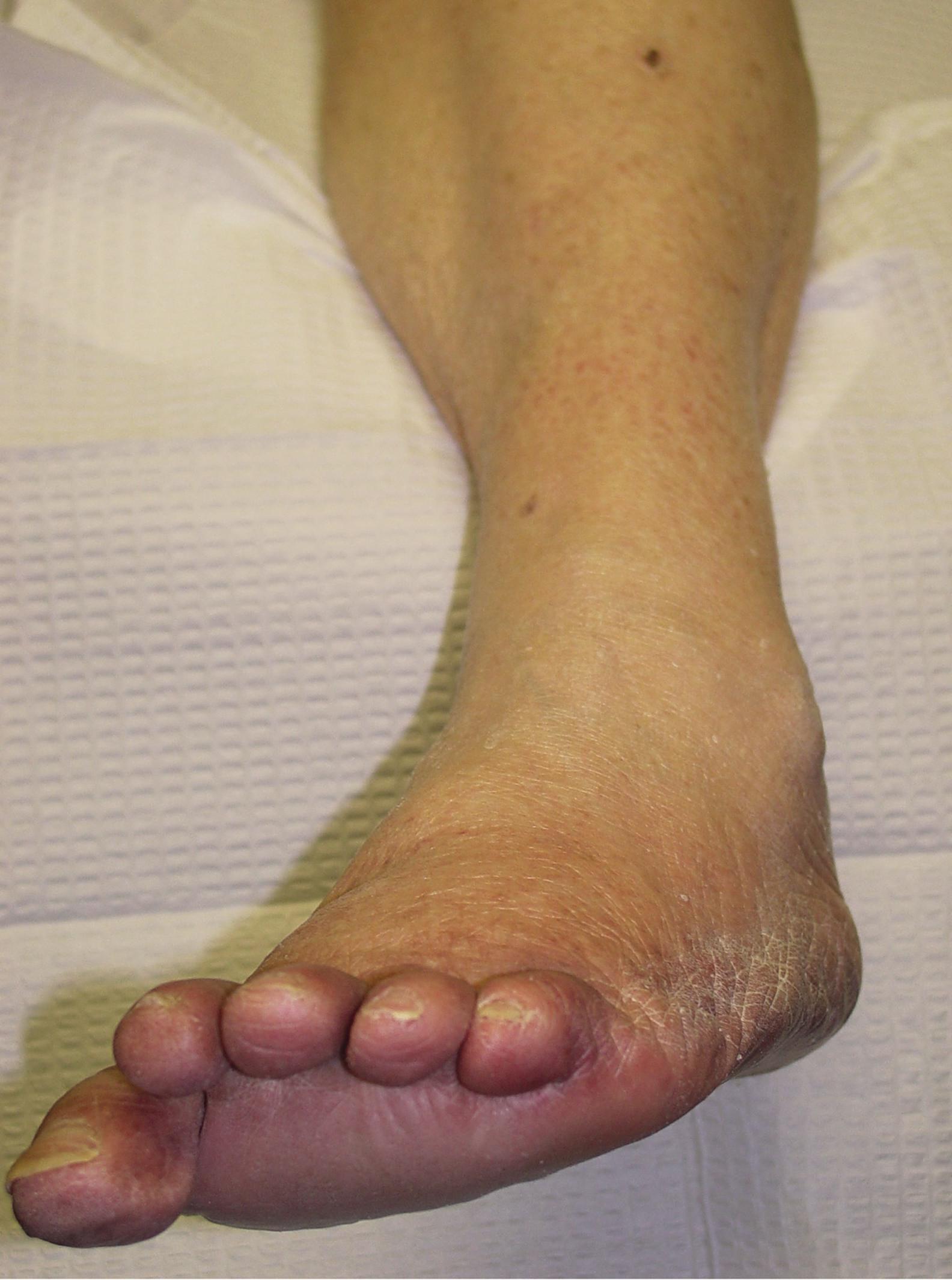 Первые признаки сахарного диабета на ногах