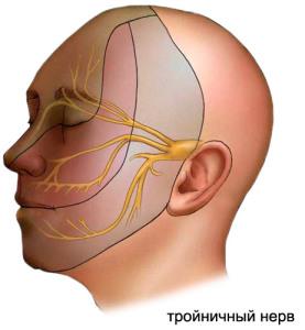 Клинические признаки невралгии тройничного нерва