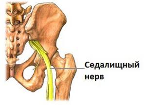 Основные проявления невралгии седалищного нерва