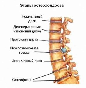 Остеохондроз позвоночника и его лечение